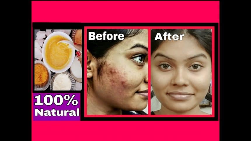 How To Reduce Pimples And Dark Spots On Face Naturally